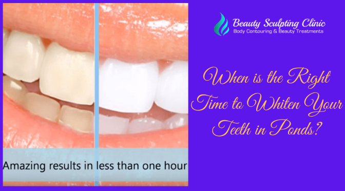 Right Time to Whiten Your Teeth